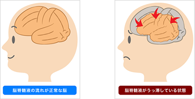 逆に施術後は、脳のむくみと血流が改善し、頭が小さくなっています。