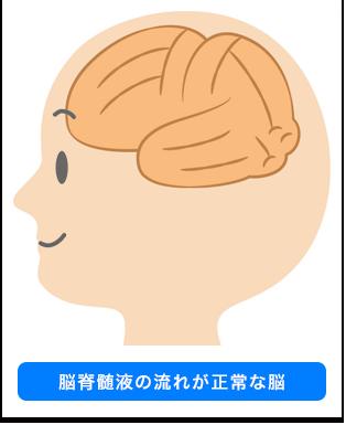 脳脊髄液の流れが正常な脳